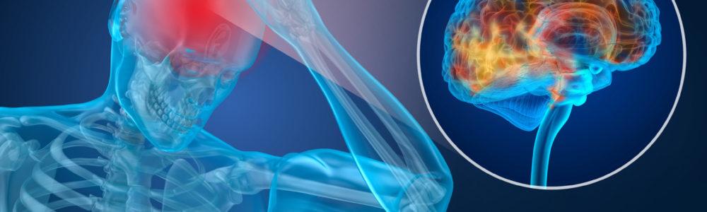 Head pain Attack, man suffering from brain pain. 3D illustration